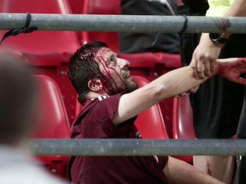 Hooligans attackieren Bayern-Fans